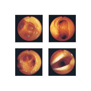 気管支内視鏡練習モデル(看護実習モデル人形) 専用ケース付き M-136-0